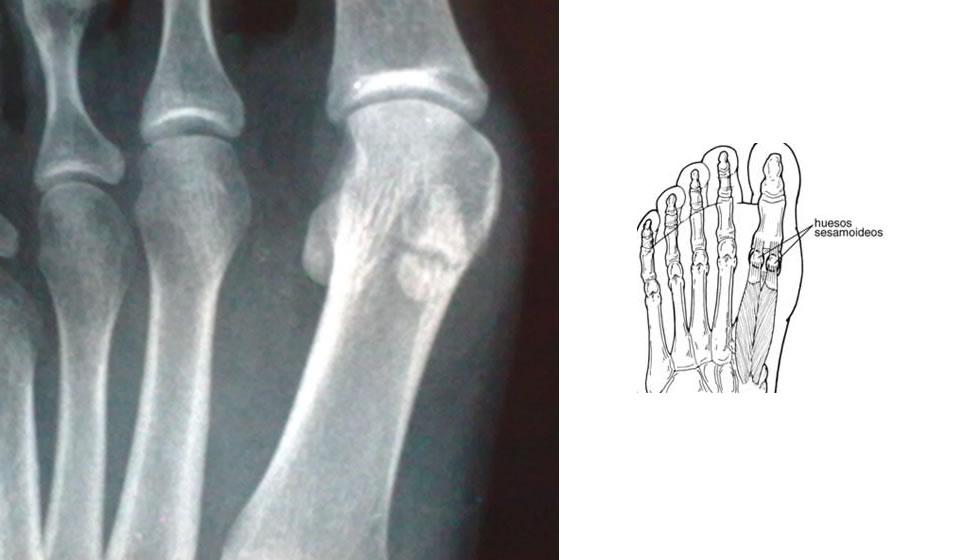 Huesos sesamoideos del Hallux - 1a parte :: Sociedad Argentina de ...